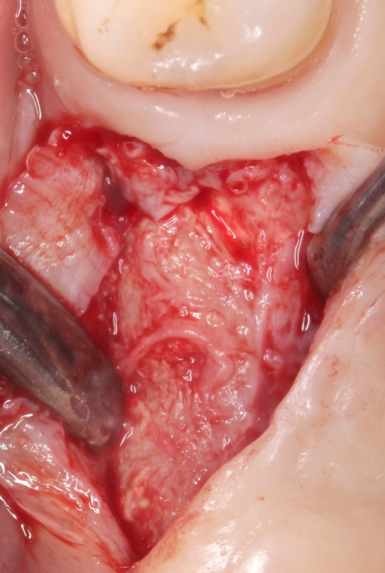 Stage 2 surgery - re-entry and tissue sampling 8 months after SFE